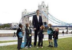 Высокие дети, гигантизм