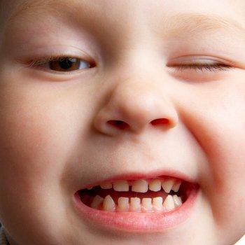 Если ребенок во сне скрипит зубками
